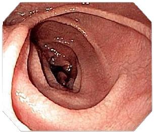 duodenum coeliac disease