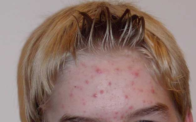 Home Remedies for Pimples and How to Remove Pimple Marks