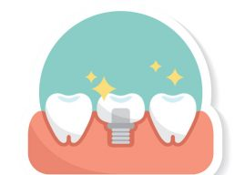 How to Avoid Dental Implant Problems?